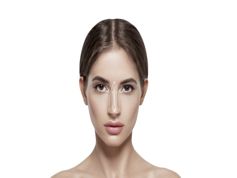 Aptos - Sole Rhinoplasty Résorbable