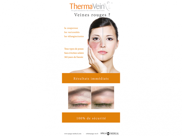 Roll up Thermavein